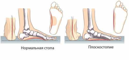 Плоскостопие: описание, причины, симптомы, лечение