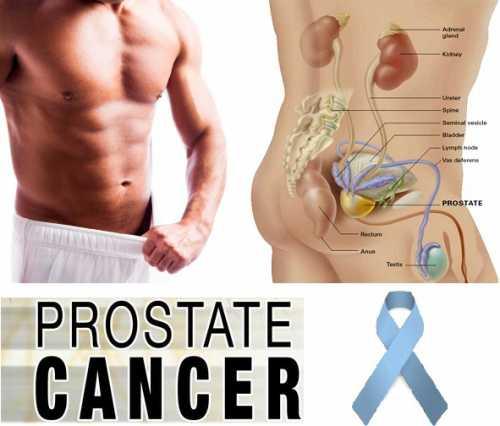 Все о раке предстательной железы простаты и его лечении
