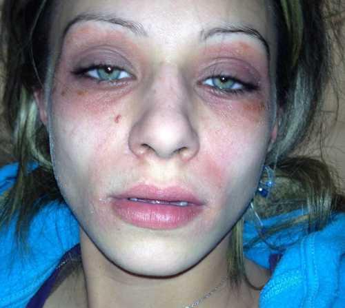 Причины аллергии на глазах симптомы и лечение