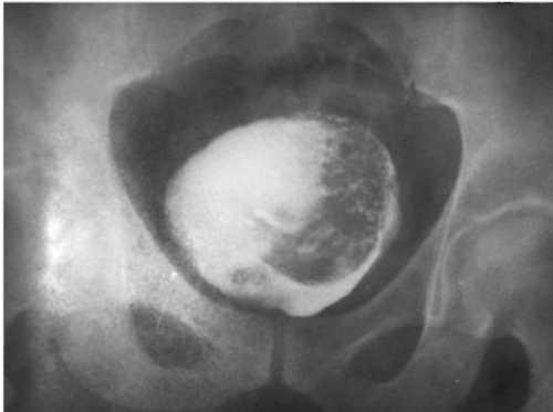 Лечение опухолей мочевого пузыря ребенка