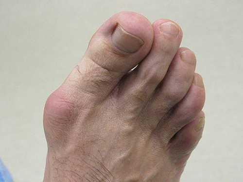 Как избавиться от косточек на ногах, что поможет