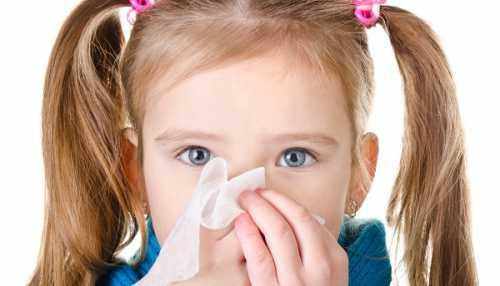 Насморк у детей причины лечение профилактика
