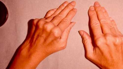 Как лечить онемение рук народными средствами
